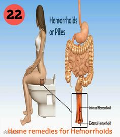 Symtoms of Hemorrhoids